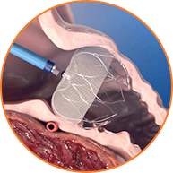 WATCHMAN device implanted